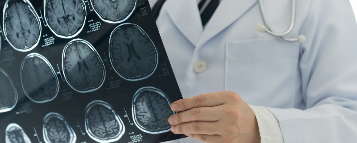 If you are inaccurately diagnosed and suffer from a stroke, call Keefe, Keefe and Unsell P.C.