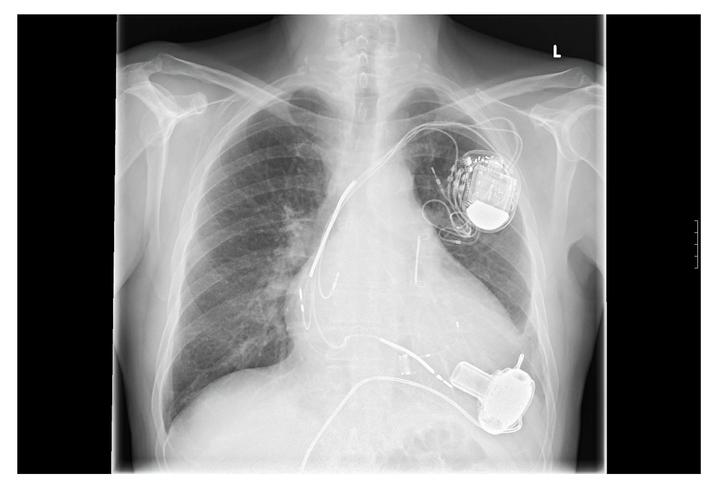 Heart Pump Medical Malpractice